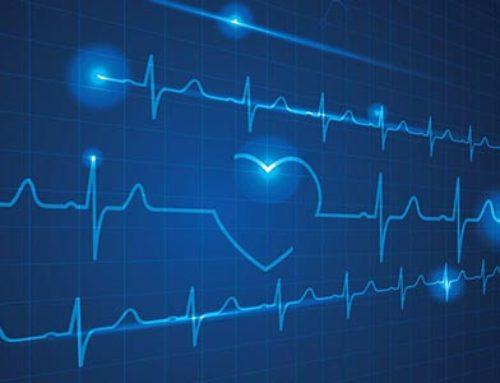 Qu'est-ce que l'ârret cardiaque ?
