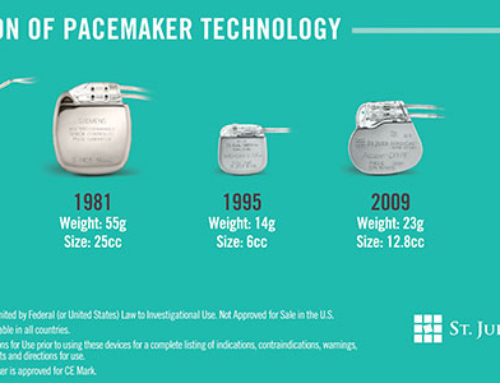 Evolution technologique des pacemakers