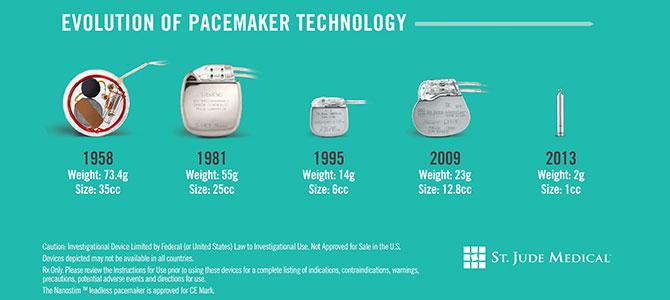 Evolution technologique des pacemakers